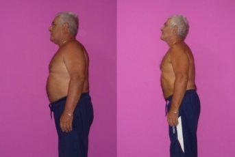 Raffaele,61 Anni, - 13 Kg